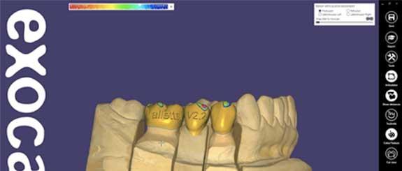 Software Dental Exocad de venta en 3dmarket , contactanos