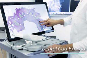 exocad-dentalcad-impresion3d-softwaredental-3dmarket